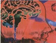 Alzheimer : Ralentir l'évolution de la maladie