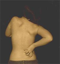Hypnose dans l'approche de la gestion de la douleur dans la fibromyalgie