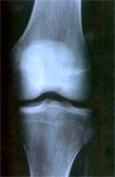 Ostéopathie pour les séniors