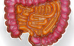 Colon Irritable, Syndrome du Colon Irritable, Intestin Irritable, Syndrome de l'Intestin Irritable