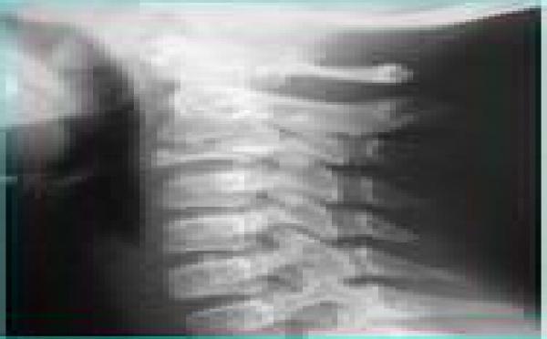 Ostéopathie: Traitement des Cervicalgies, Douleurs Cervicales en Ostéopathie