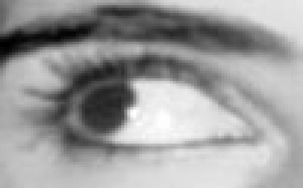 Traitement du Stress Post traumatique, Syndrome Stress Post Traumatique, EMDR, Integration par les Mouvements Oculaires, IMO et Hypnose dans les SSPT