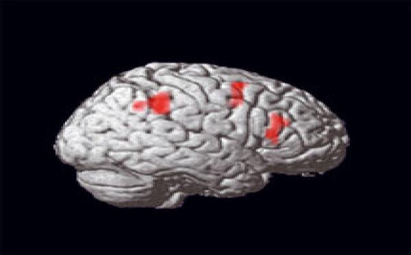 Hypnose: le cerveau observé sous hypnose