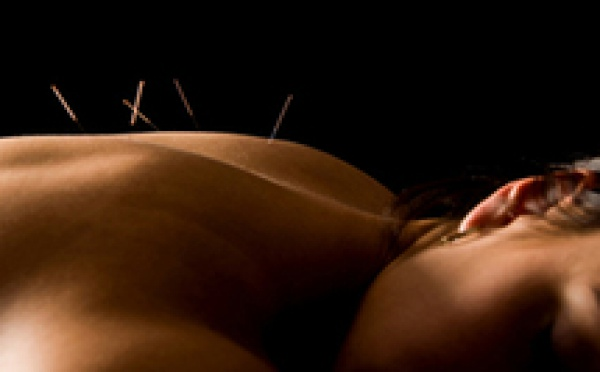 Acupuncture en rhumatologie : l'acupuncture pour quelles indications ?